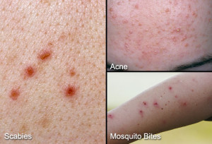 scabies-article
